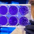 電子顕微鏡試料作製。バクテリアの観察方法。